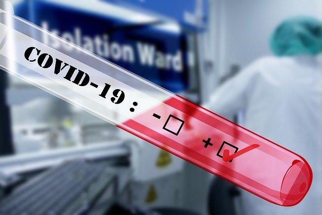 За сутки более 250 казахстанцев заболели пневмонией с признаками COVID-19