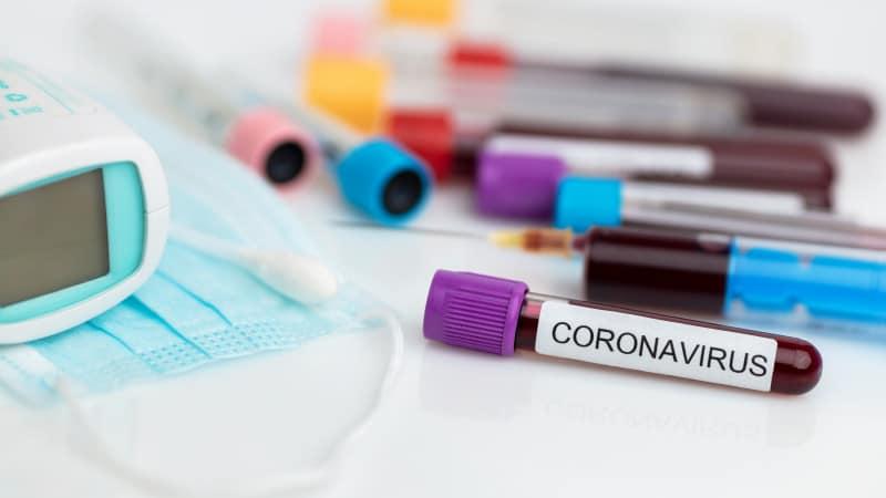 Ситуация с коронавирусом в районах Северо-Казахстанской области на 20 января 2021 года